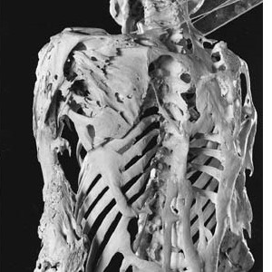 fibrodysplasia