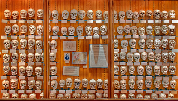 5 Koleksi Mengerikan di MutterMuseum